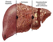 nursing-diagnosis-for-hepatitis