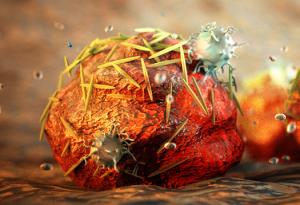 tumor-ganas